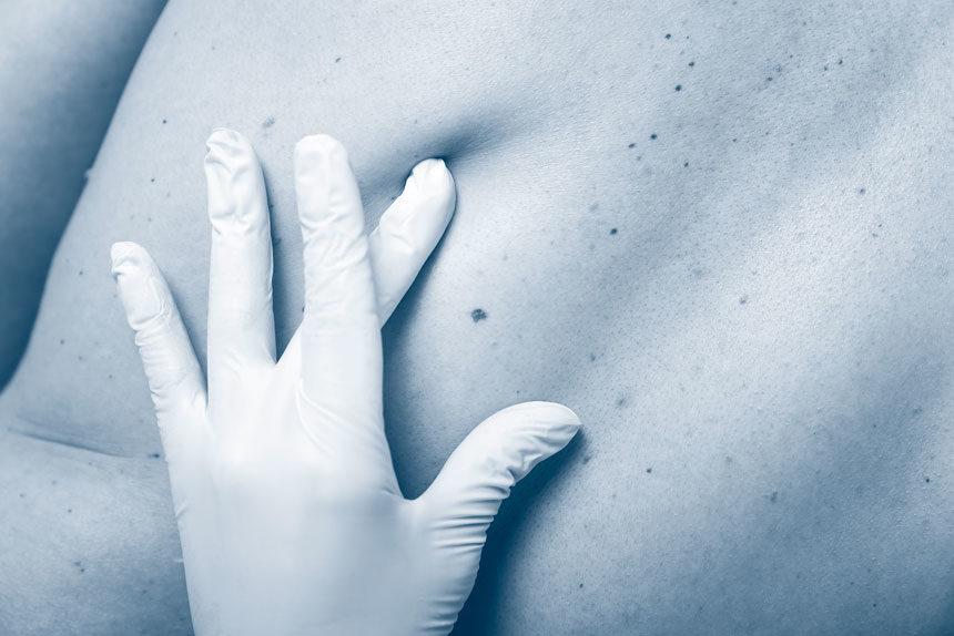 aiims-dermatologia-roma-860×574